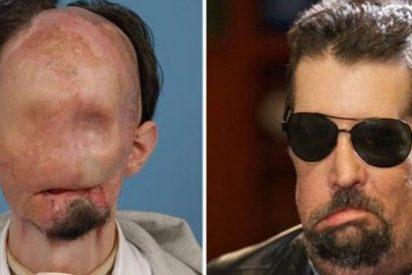El primer transplantado de cara de EEUU ya puede oler