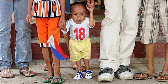 Este filipino de 59,7 cm y 18 años es el hombre más pequeño del mundo