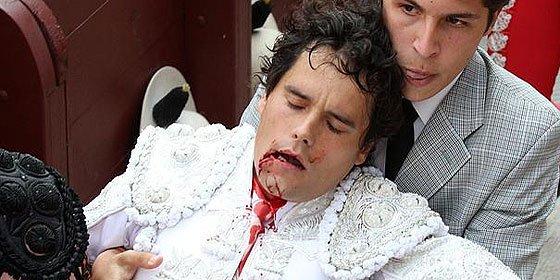 El torero Miguel Abellán ha perdido seis dientes y casi no puede hablar