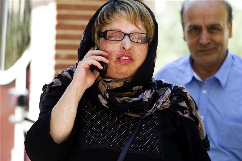 Una mujer iraní desfigurada perdona in extremis al hombre que le arrojó ácido