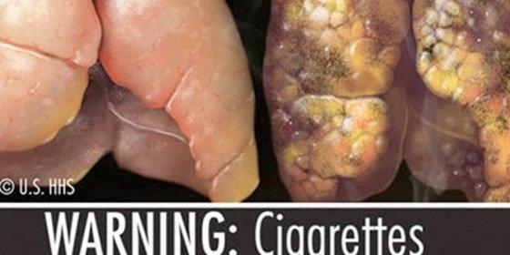 ¿Le molesta ver pulmones cirrosos en las cajetillas? A las tabaqueras sí y han demandado a EEUU