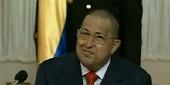 ¿Al presidente Hugo Chávez se le cae el pelo o nos toma el pelo?