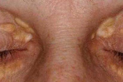 Los bultos en los ojos son una posible señal de infarto