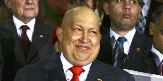 El antiguo médico de Chávez afirma que le quedan dos años de vida