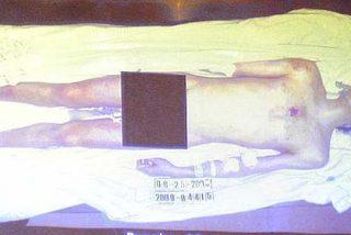 La última y extraña foto de Michael Jackson, muerto sobre la camilla