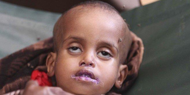 ¿Por qué TVE 'pixela' la cara de un niño español y no la de un niño africano?