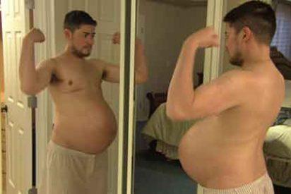El 'hombre embarazado' piensa en una histerectomía tras tres partos