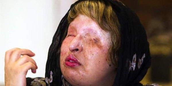 Atacados con ácido por negar la boda de su hija con un delincuente