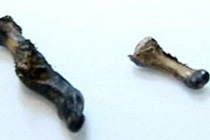 Tres años despues resuelven el misterio del dedo de Yeti