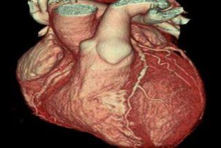 ¿Sabes qué debe hacerse si tú o un familiar sufre un paro cardíaco?