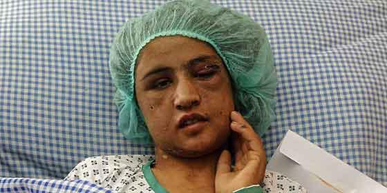Detenido el suegro de la adolescente afgana maltratada