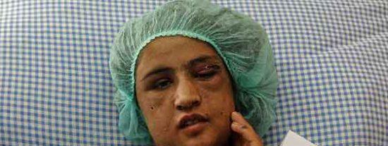 Torturada por la familia de su marido por negarse a prostituirse