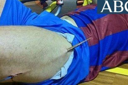 Un jugador de fútbol sala, corneado por un astilla de medio metro