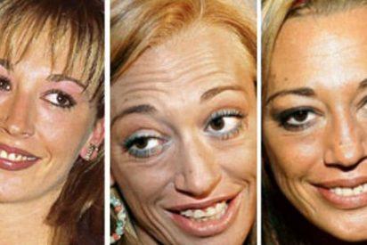 Narices descolocadas, injertos capilares o tetas mal puestas: cambios de look 'chapuceros' que han puesto en peligro la carrera de 5 estrellas de nuestra TV