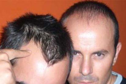 ¿Sabe usted qué funciona y que es un cuento chino en la caída de pelo?
