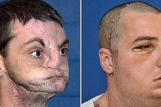 El mayor y mas sofisticado transplante de cara jamás realizado