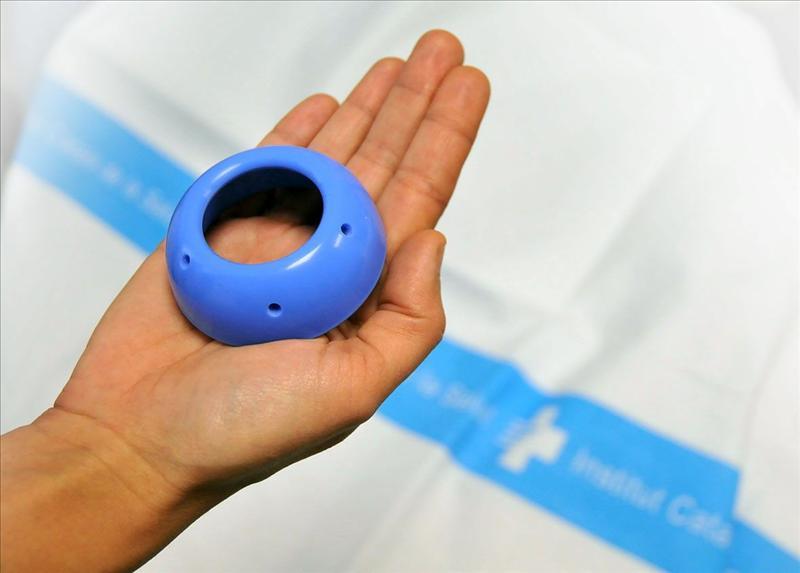 La inserción de un anillo en el útero reduce en un 75 por ciento los partos prematuros