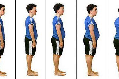 La cirugía contra la obesidad te cambia el sabor de los alimentos