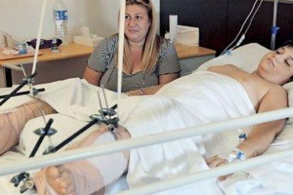 Pedro Cavadas reimplanta los dos pies a un niño de 10 años