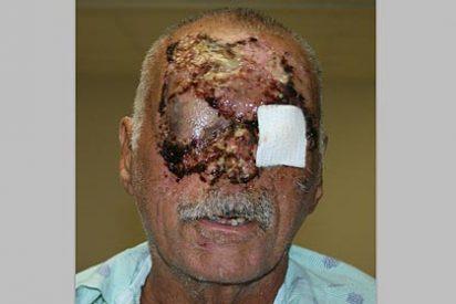 La víctima del 'caníbal de Miami' reaparece pero 'mordisqueado'