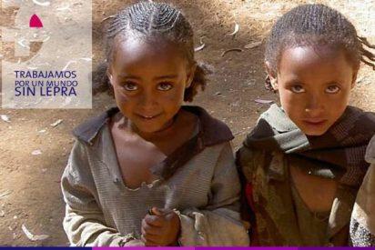 """""""Fontilles"""" inicia un programa en Mozambique"""