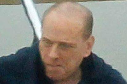 La alopecia galopante de Berlusconi, al fin al descubierto