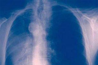 Científicos españoles dan con un fármaco que 'bloquea' el cáncer de pulmón