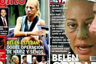 Impactante aspecto de Belén Esteban después de operarse la nariz y los pechos ¿Quién se cree ahora lo de su depresión?