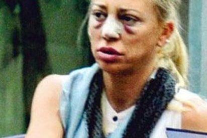 """Todas las reacciones, 'amenazas', resultados y declaraciones tras la operación de pechos y nariz de Belén Esteban:""""Estaba traumatizada"""""""