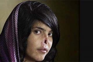 Mata a su hijo y corta la nariz y labios a su mujer por un crimen de honor en Pakistán