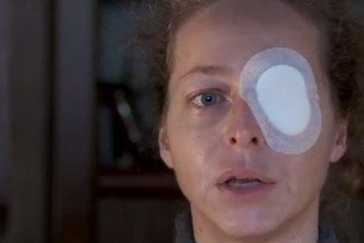 El juez admite la querella contra los Mossos de la mujer que perdió un ojo en el 14N