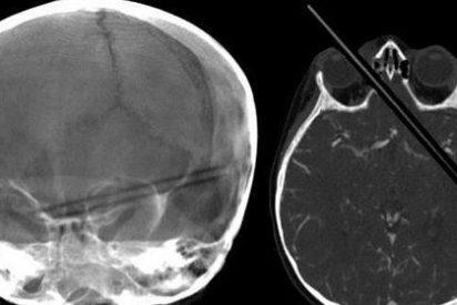 Una niña se clava un lápiz en el ojo que atraviesa los dos hemisferios del cerebro