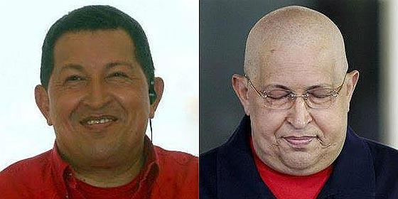 """Dr Cardona: """"Una inyección habría sido suficiente para inocular el cáncer a Chávez"""""""