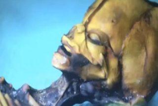 El 'extraterrestre' de Atacama es en realidad un 'simple' niño mutante