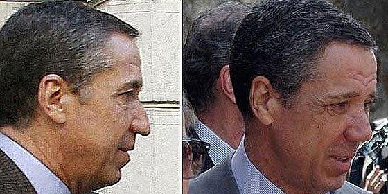 Eduardo Zaplana se hace la cirugía estética en la nariz para estar 'más guapo'