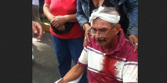 El sandinista Ortega reprime a palos la protesta de los 'viejitos' en Nicaragua