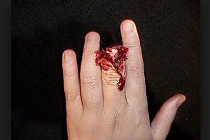 Tres años de cárcel para la mujer celosa que cortó un dedo a otra de un mordisco
