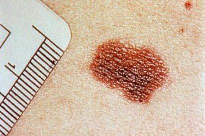 Una simple inyección frenará el melanoma y hará que se reduzca drásticamente