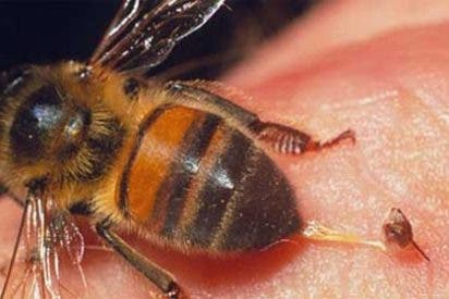 Cómo actuar en caso de picadura de abeja o avispa