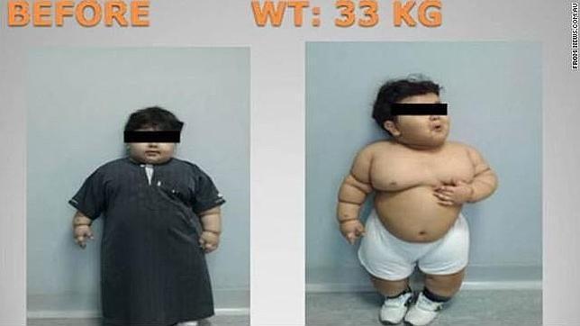 Dejan que su hijo de 2 años pese 35 kilos y lo 'arreglan' ¡reduciéndole el estómago!