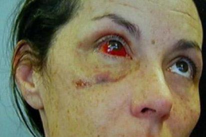 [Vídeo] Un iracundo policía le rompe los huesos de la cara a una mujer en la cárcel