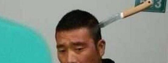 ¿Le han clavado un cuchillo en la cabeza y lo lleva 'puesto'? ¡A la cola y a tener paciencia como un chino!