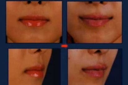 Corea del Sur, cada vez más obsesionada con la cirugía: ahora 'smart lipt', la sonrisa permanente