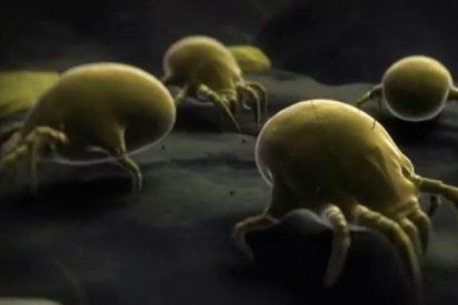 [Vídeo] ¿Se atreve a ver a los 'alienígenas' que se comen su piel mientras duerme?