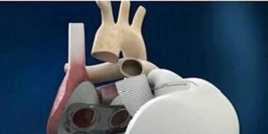 ¿Hacia la inmortalidad? Trasplantan un corazón artificial elaborado con tejidos biológicos