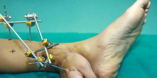 [Vídeo] Una máquina le secciona una mano y se la implantan en un pie como si tal cosa