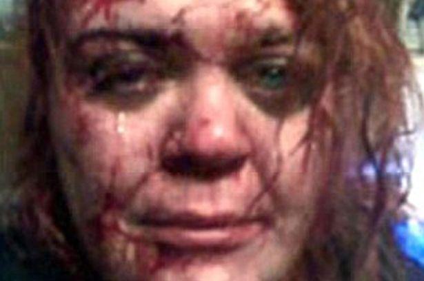 Se hace un 'selfie' ensangrentada y lo cuelga en Facebook para que no la mate a palos el fiera del marido