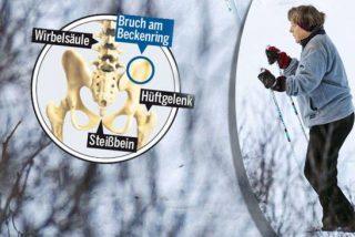Angela Merkel se partió la pelvis usando esquíes originales de la comunista RDA