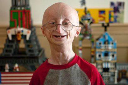 Se ha muerto de puro viejo un adolescente a los 17 años por una extraña enfermedad
