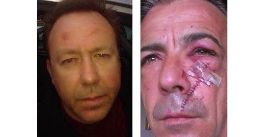 El crítico taurino de El Mundo y el representante de los banderilleros resuelven sus diferencias a puñetazos